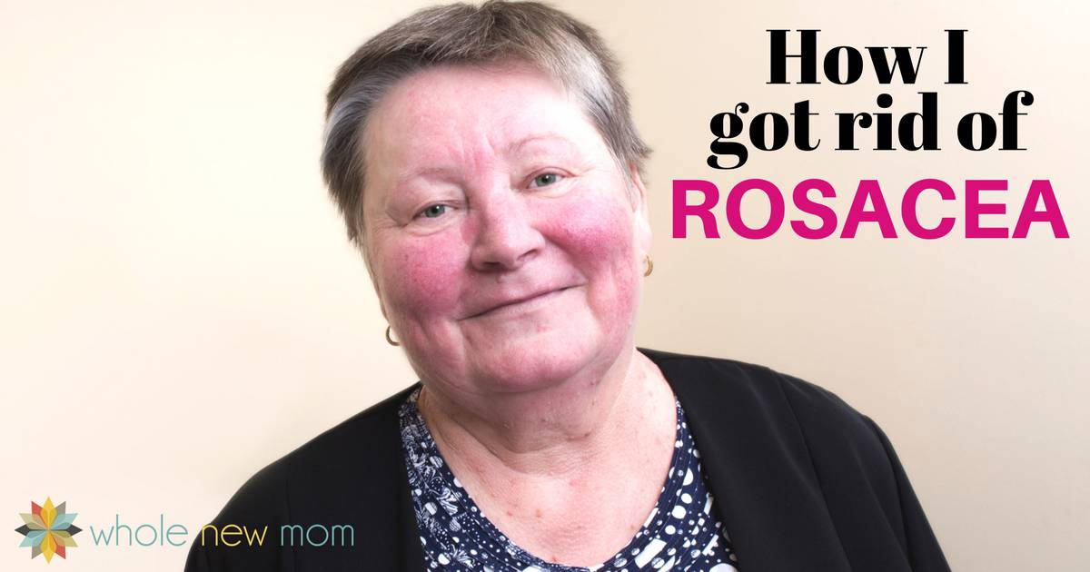 How to Get Rid of Rosacea - Natural Rosacea Remedy | Whole New Mom